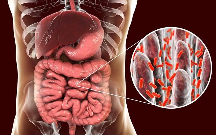 La nutrición antinflamatoria. La inflamación.